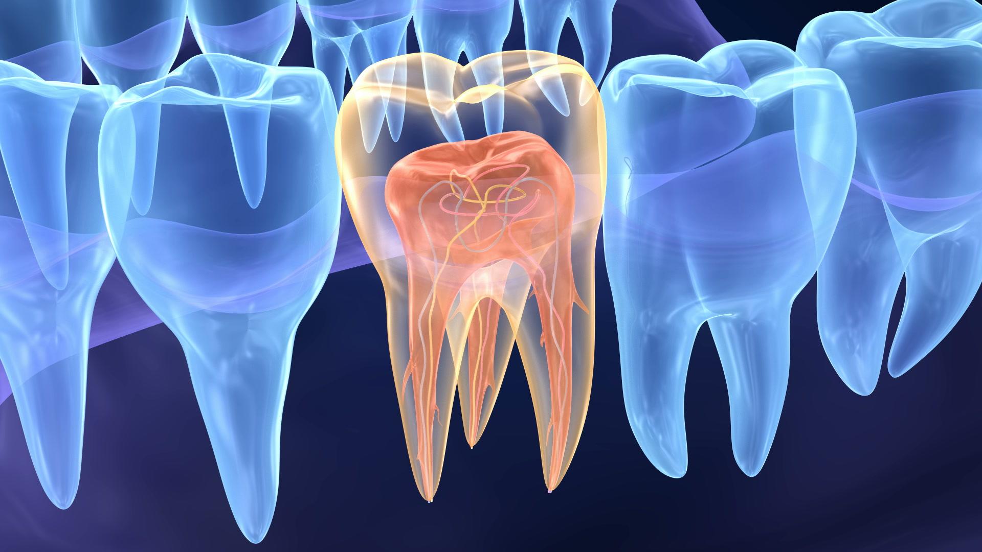 endodontie, tratamente canal | Perfect Dental Clinic
