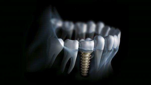 implant dentar Cluj   Perfect Dental Clinic