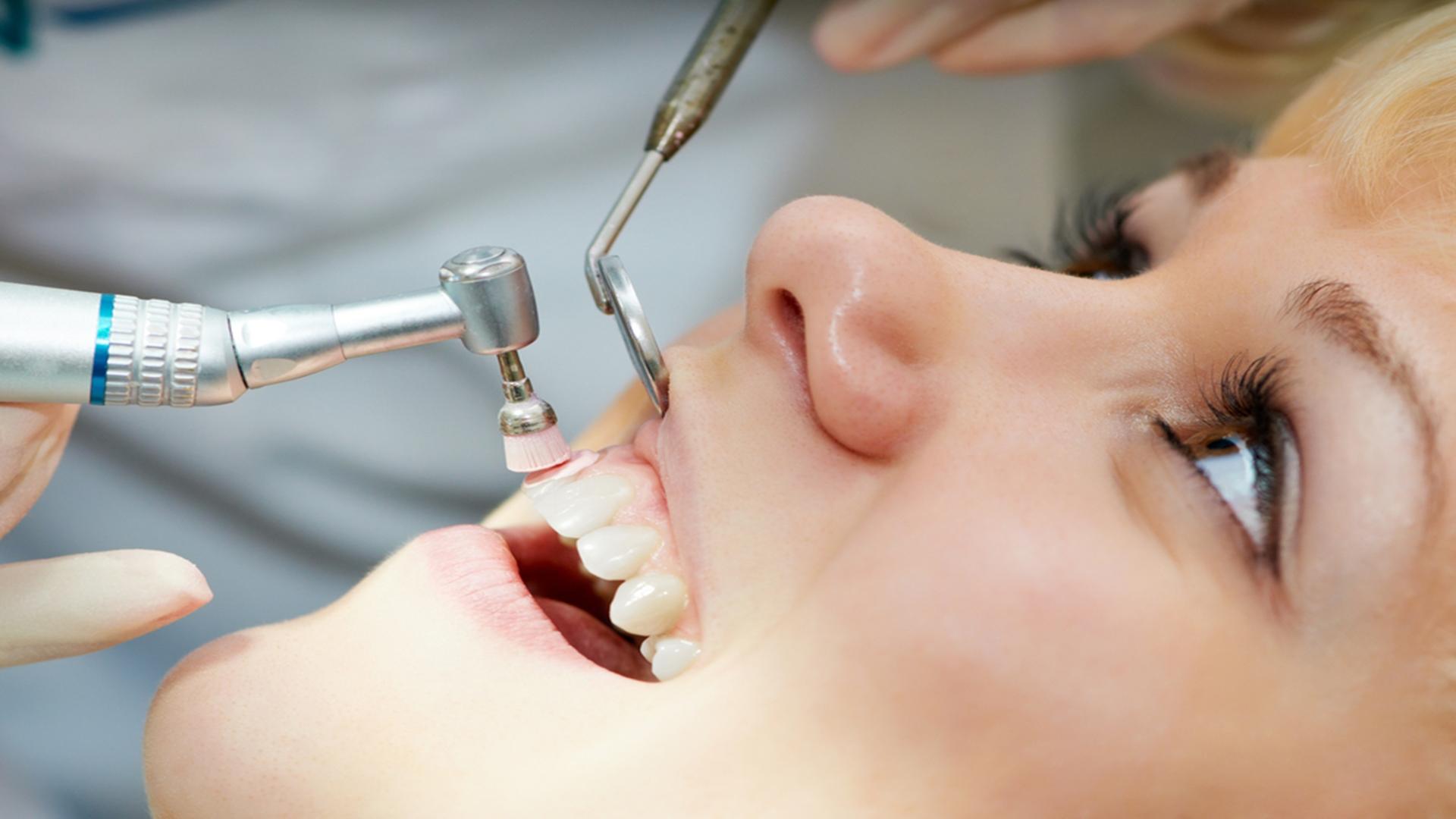 profilatie dentara Cluj | Perfect Dental Clinic