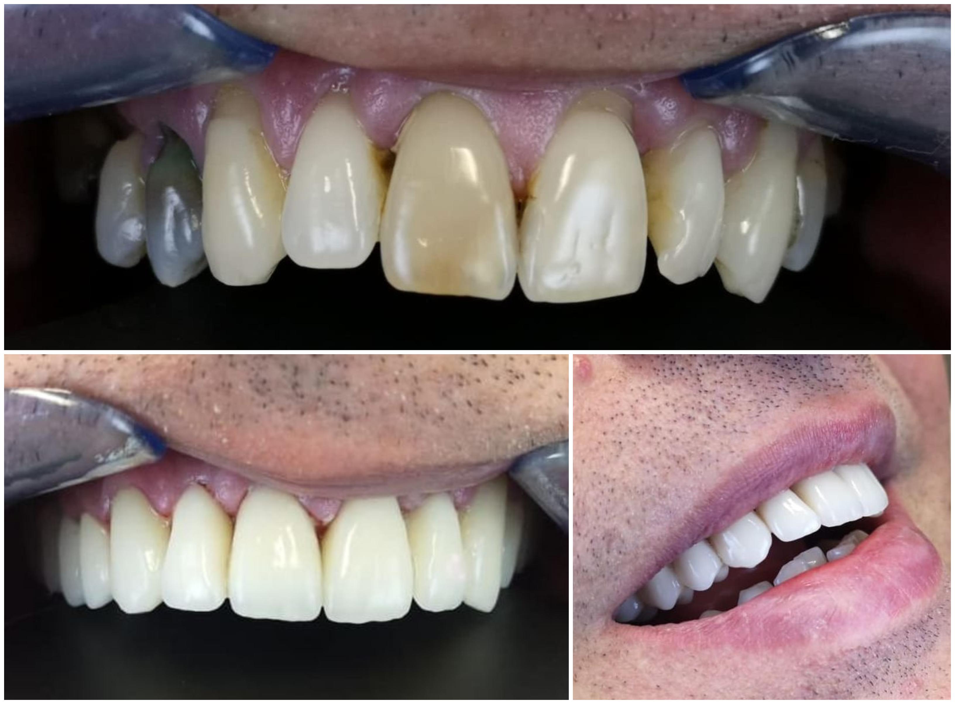 lucrare fixa Zirconiu, Perfect Dental Cluj