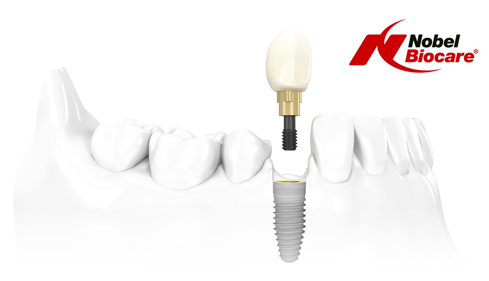 Implant dentar Nobel Biocare