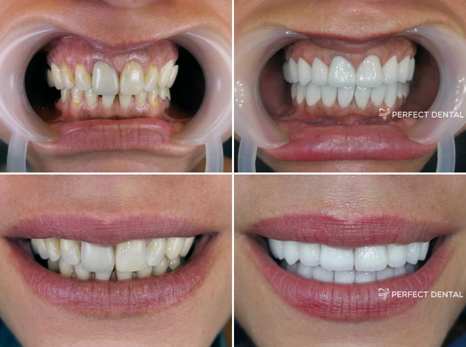 Reabilitare totală orală
